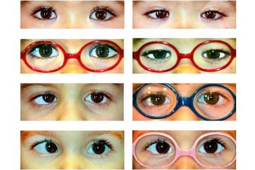 zespół leniwego oka