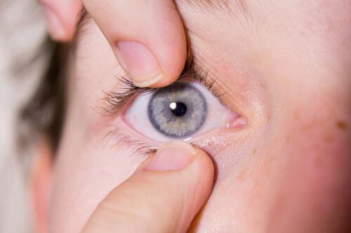 soczewka może utknąć w oku