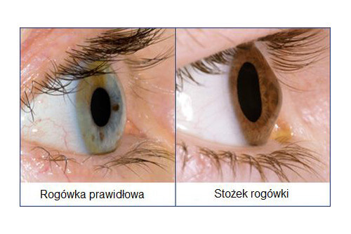 stożek rogówki - choroba oczu